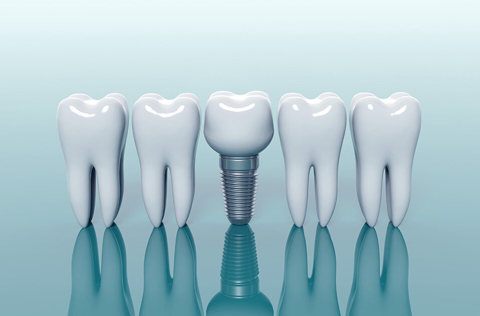 Limpiezas de los implantes